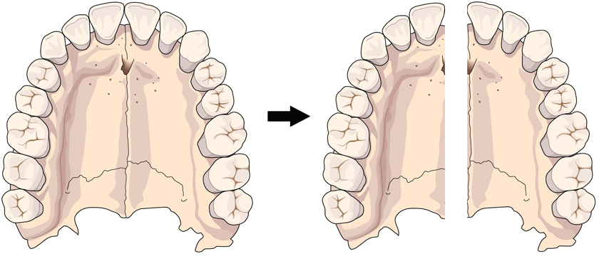 Langley Orthodontics Maxillary Expansion