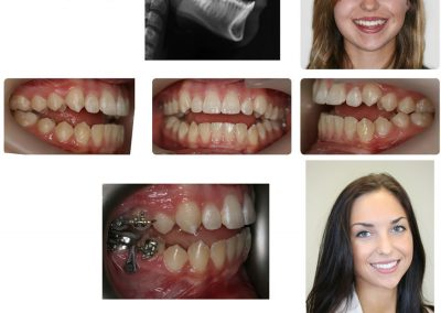 Before & After: Orthodontic Transformations - 01