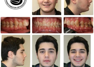 Before & After: Orthodontic Transformations - 02
