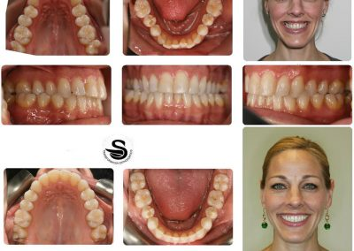 Before & After: Orthodontic Transformations - 03
