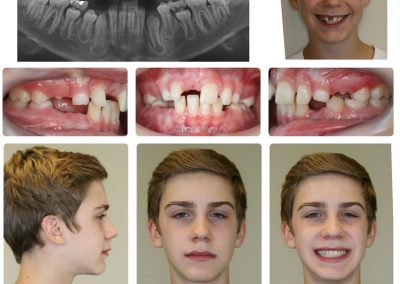 Before & After: Orthodontic Transformations - 04