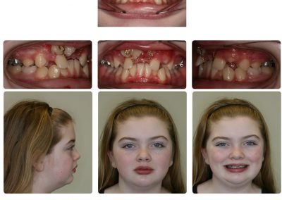 Before & After: Orthodontic Transformations - 05