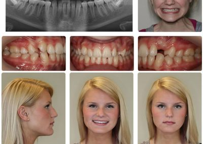 Before & After: Orthodontic Transformations - 06