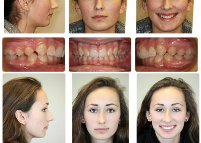 Before & After: Orthodontic Transformations - 07