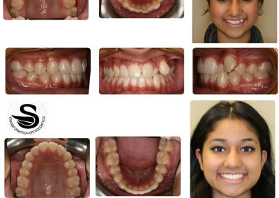 Before & After: Orthodontic Transformations - 08