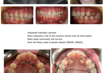 Before & After: Orthodontic Transformations - 09