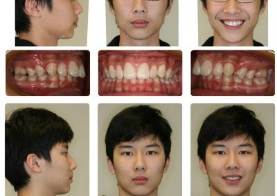 Before & After: Orthodontic Transformations - 10