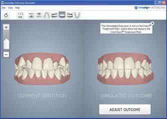 Langley Invisalign Smile Simulator